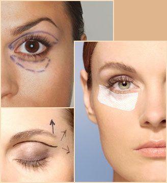 Plastica per gli occhi: rimedi e soluzioni chirurgiche